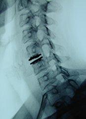 neurochirurgie-schoenmayr-02.jpg