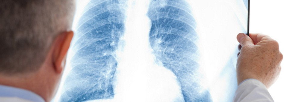 TOPMED24 - Germany's specialists - pulmonologist
